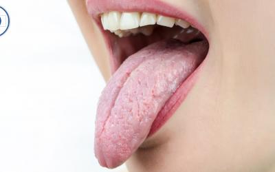 Xerostomía o sensación de boca seca o pegajosa