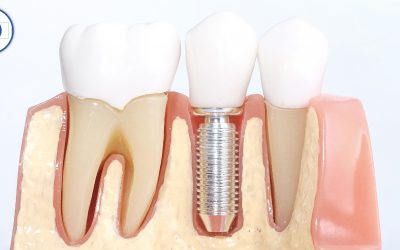 Todo lo que debe saber sobre los implantes dentales